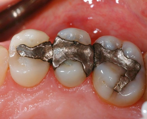amalgam-fillings
