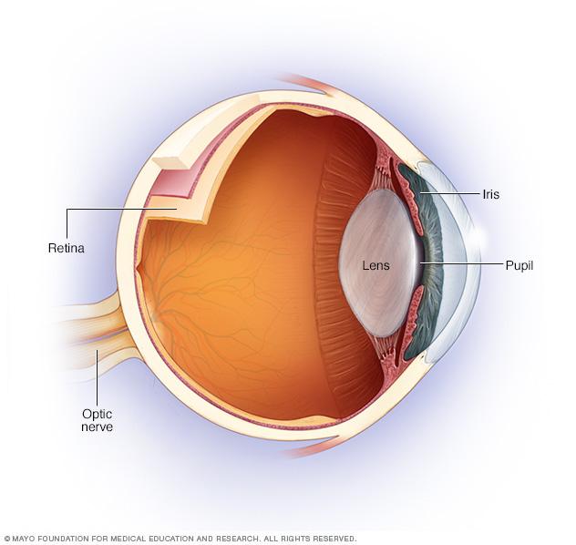 ds00882-ans7_opticneuritisthu_jpg