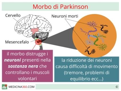 morbo-di-parkinson_640x480