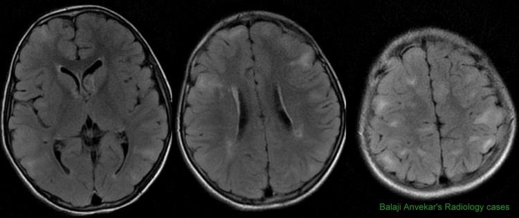 Tuberous sclerosis radiology