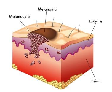 Kanser-Melanoma